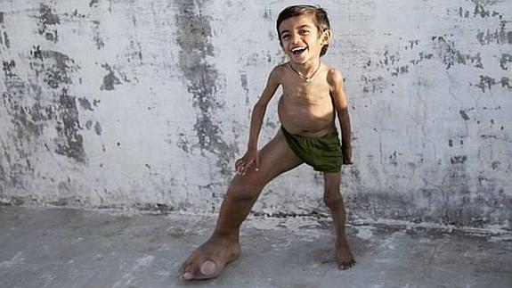 Este joven venezolano tiene los pies más grandes del mundo