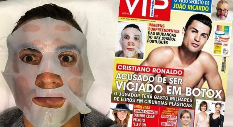 Cristiano Ronaldo se gasta «miles de euros» en bótox